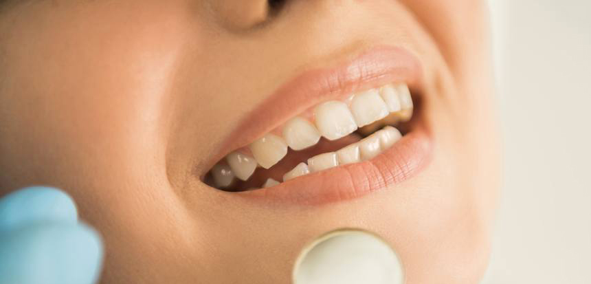 6-Proven-Tips-To-Look-After-Your-Teeth.jpg